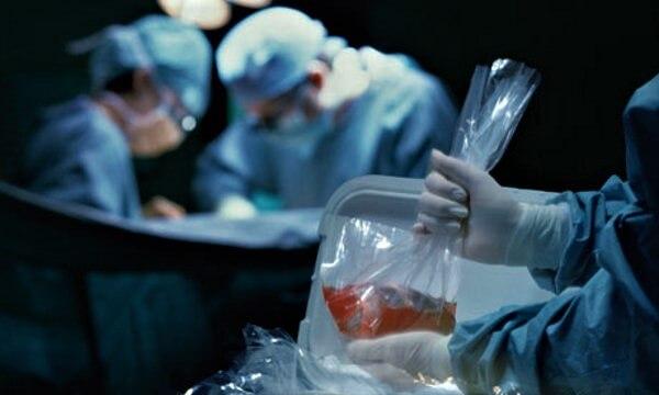 Лечение в Корее, трансплантация Корея