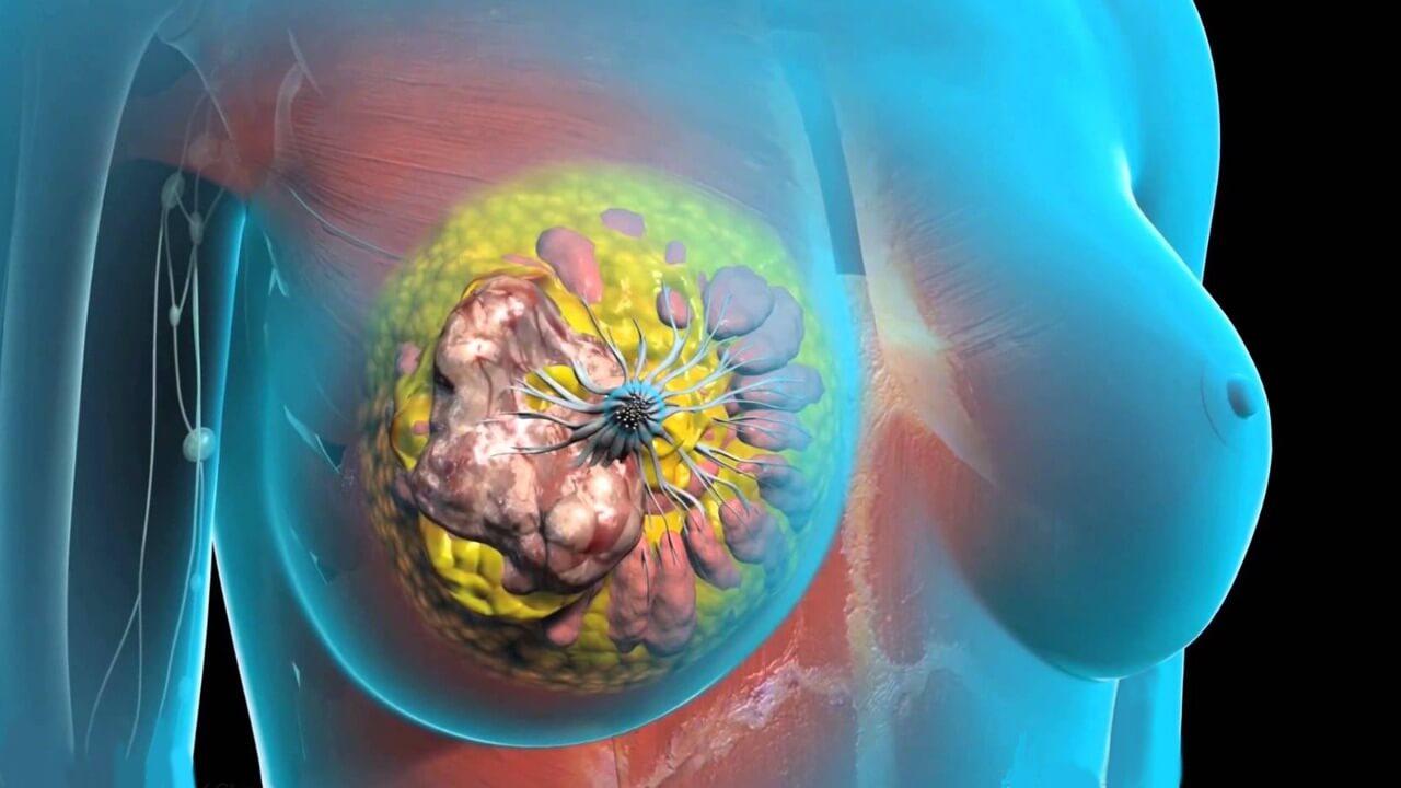 Лечение рака груди Корея