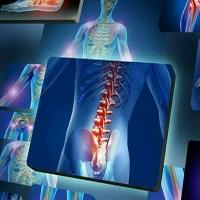 Эндопротезирование суставов Корея, рентген суставов Корея