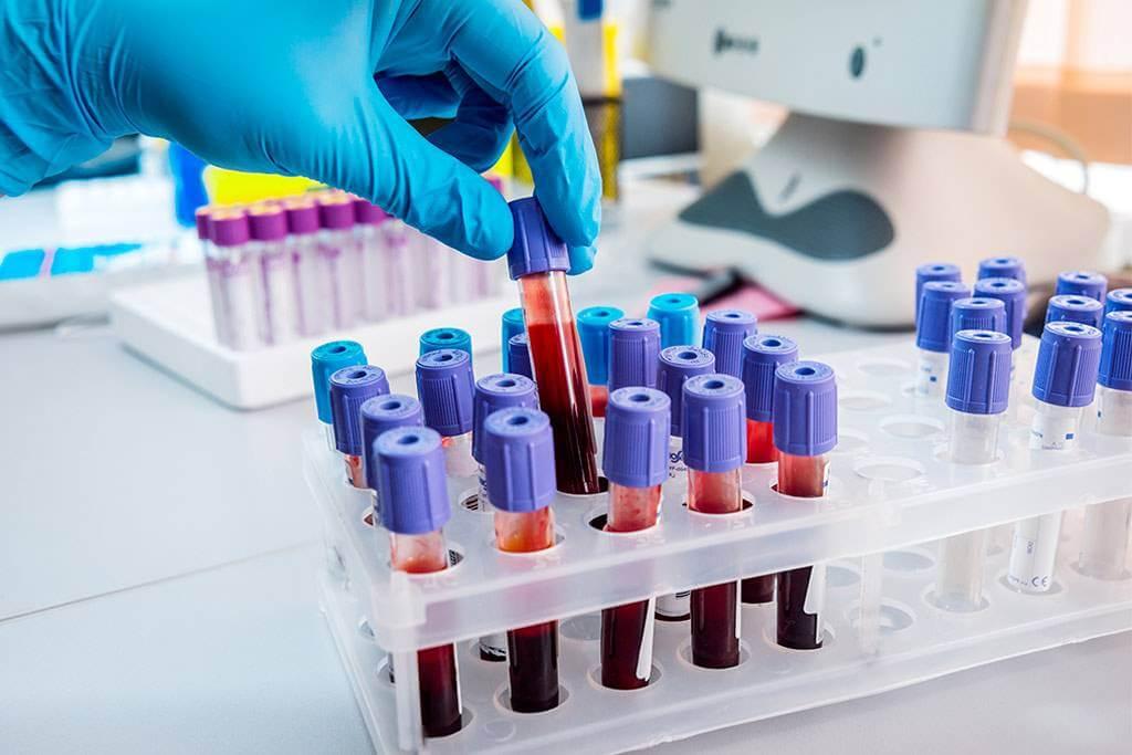 Лечение лейкемии в Корее